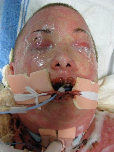 Toxic epidermal necrolysis - Wikipedia