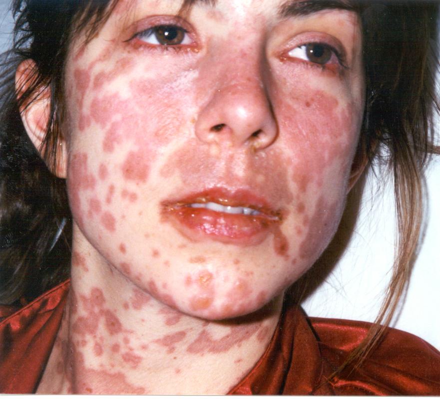 Stevens Johnson syndrome / toxic epidermal necrolysis ...